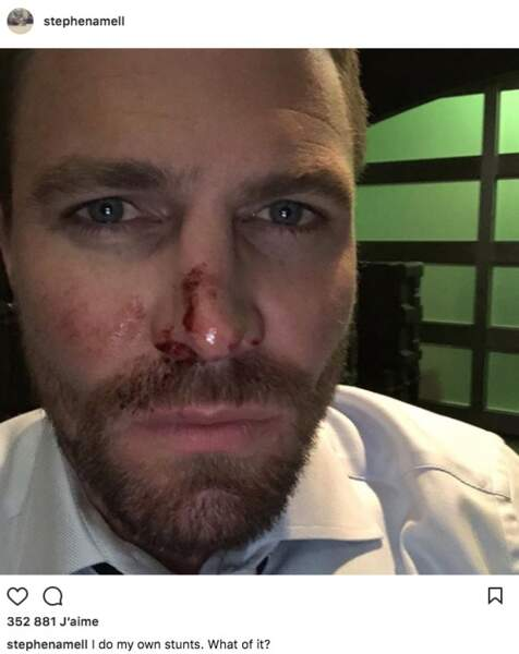 Il n'est pas le seul à s'être égratigné : Stephen Amell (Arrow) est aussi un peu abîmé.