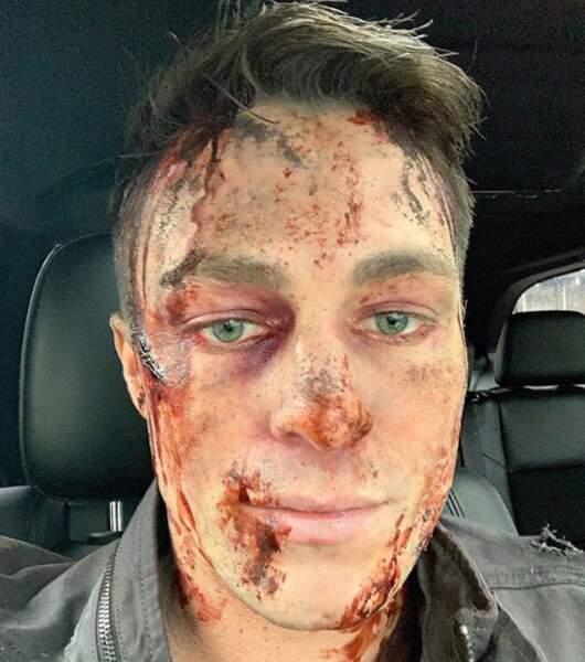 Colton Haynes ensanglanté sur le tournage de la saison 8 d'Arrow