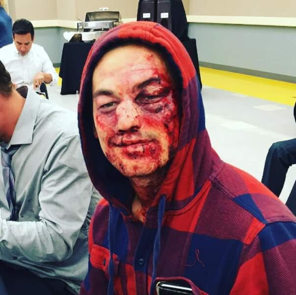 Alex Karev n'a pas raté Andrew l'interne